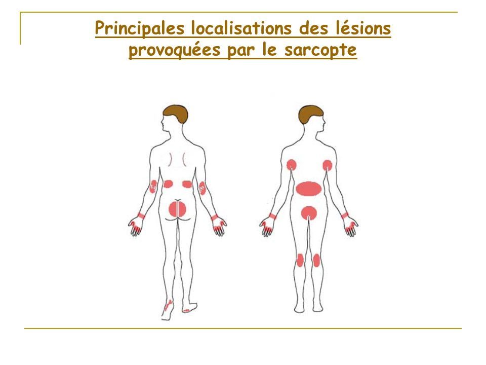 Principales+localisations+des+lésions+provoquées+par+le+sarcopte-sante-intime