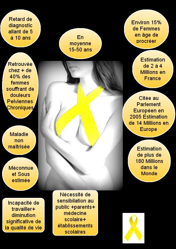douleur-vaginale-santé-intime-causes-endométriose