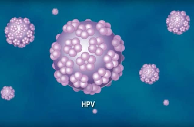 Le Papillomavirus Humain (VPH), symptômes et soins.
