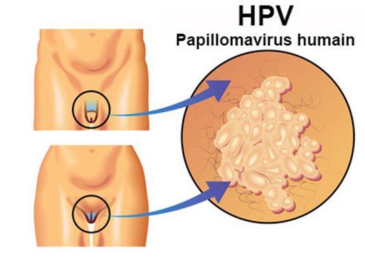 papillomavirus-mst-sante-intime