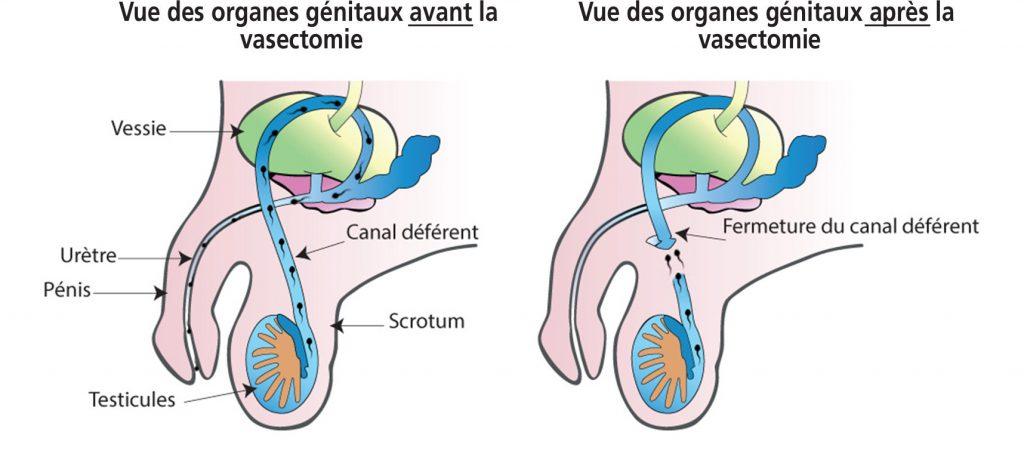 illustration-vasectomie-santé-intime