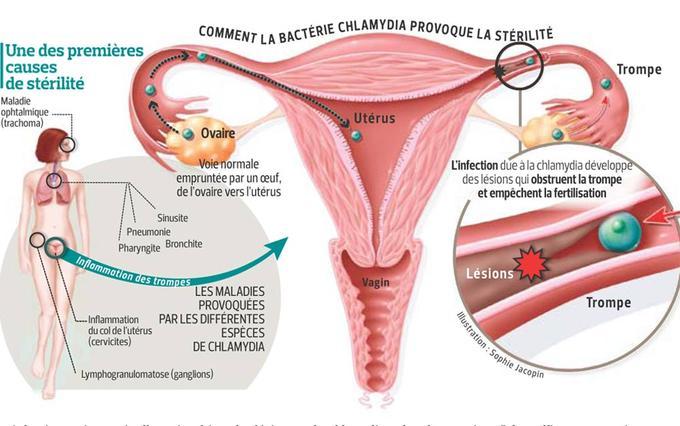 chlamydia-risques-fertilité-schéma-santé-intime