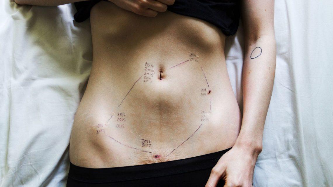 Qu'est-ce que l'endométriose, ses symptômes et son traitement ?