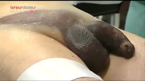 se casser le pénis - santé-intime 2
